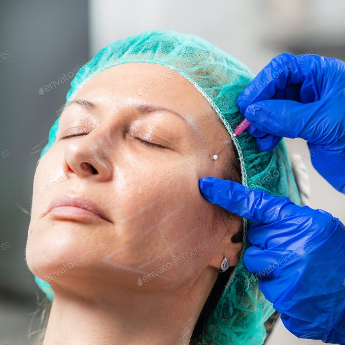 Mesotherapy Facelifting Procedure. 3D Meso Threads.