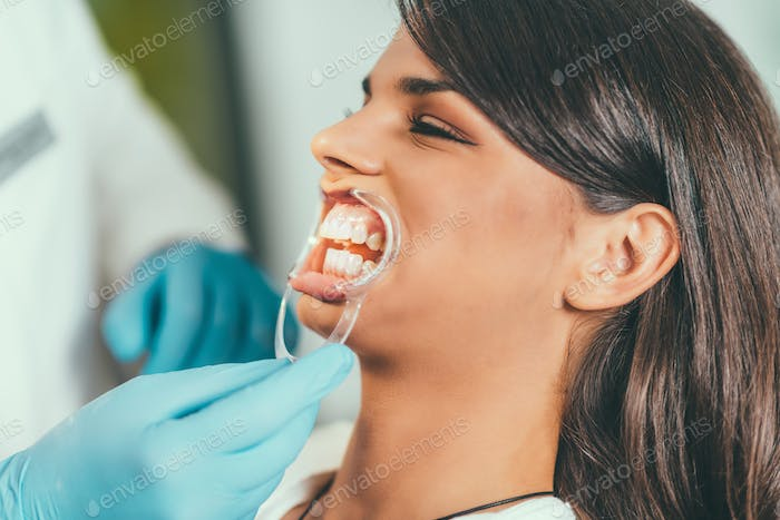 Tooth whitening procedure
