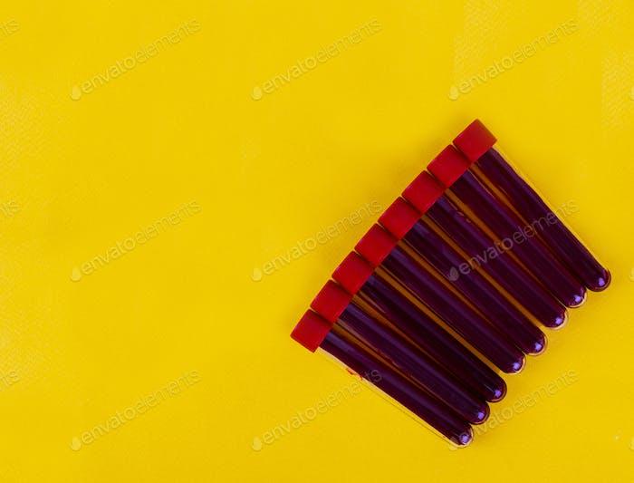 Reagenzgläser mit Blutproben