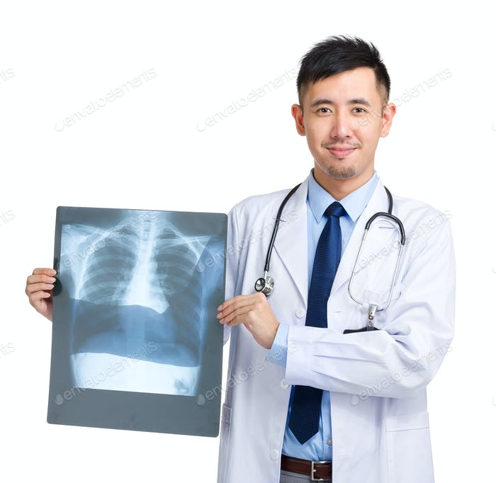 Mature doctor holding x-ray