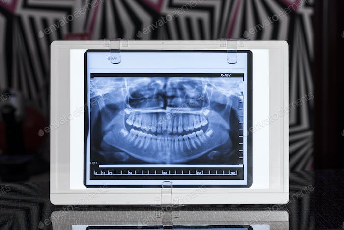 Front View Xray