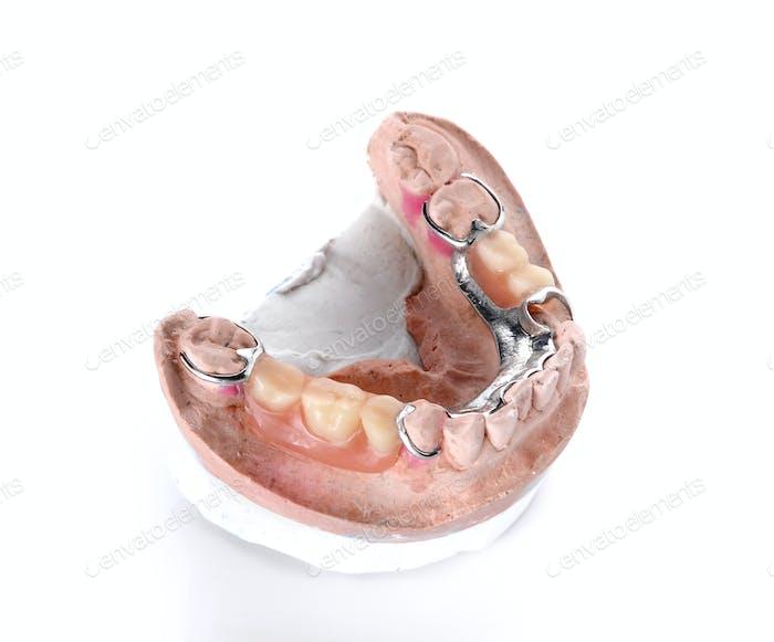 Denture mold,false teeth on white background.