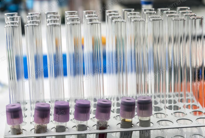 Test tubes in a laboratory, conceptual image
