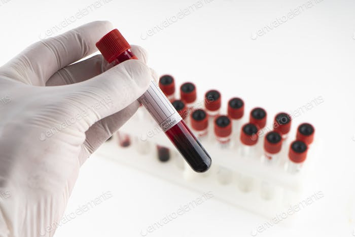 Test tube containing a blood sample test tube for Covid-19 (coronavirus) analyzing