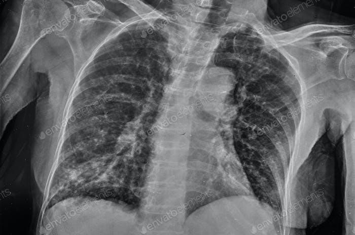 Röntgenstrahlen