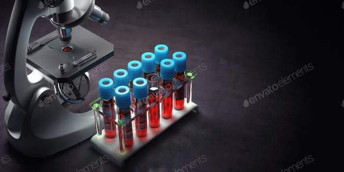 Blood test samples tubes and microscope on black background. Healthcare, medical laboratory concept.