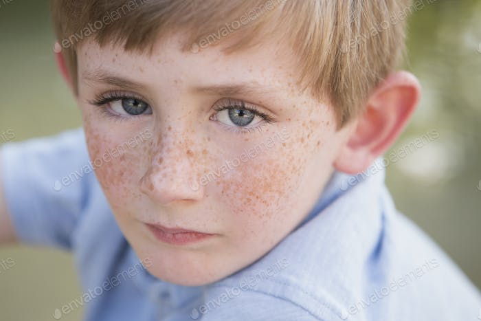 A young boy with freckles on his face.