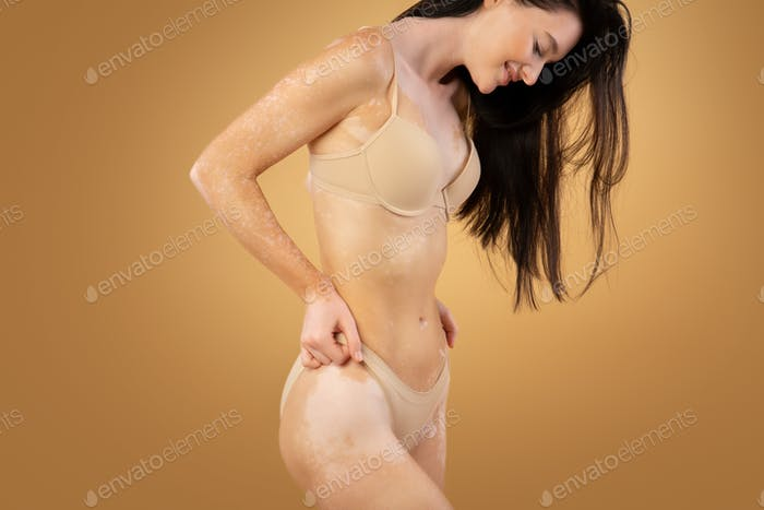 Young slim woman with vitiligo skin posing in underwear over beige background