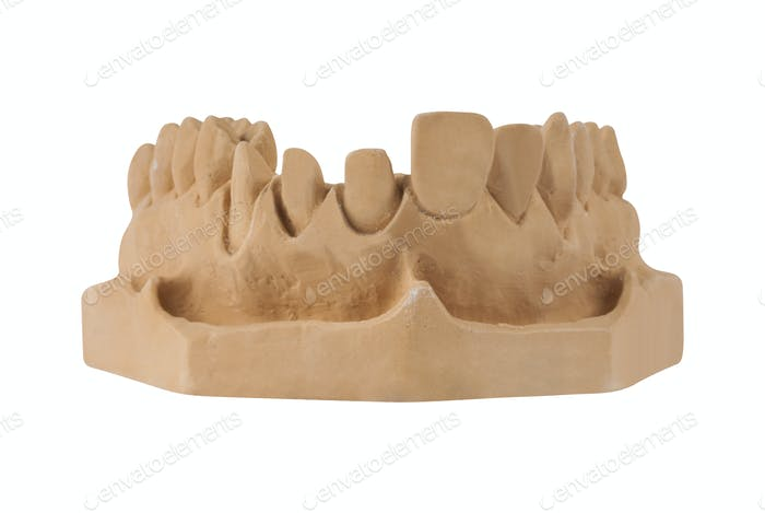 Gypsum model of jaw