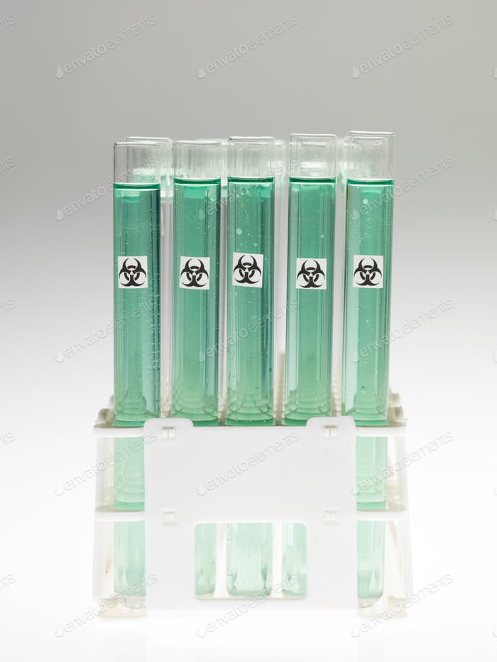 bio hazardous substance in laboratory test tubes