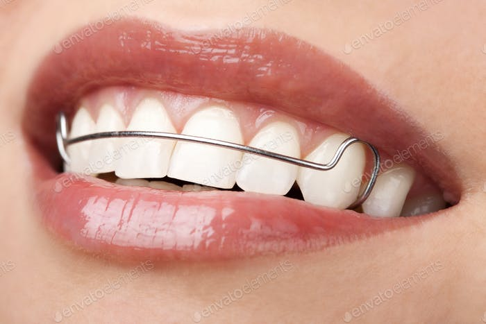 Frau schöne Zähne mit Halter kieferorthopädische Korrektur