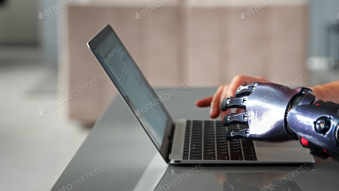 Black bio limb prothesis and healthy hand appear over laptop and type on keyboard