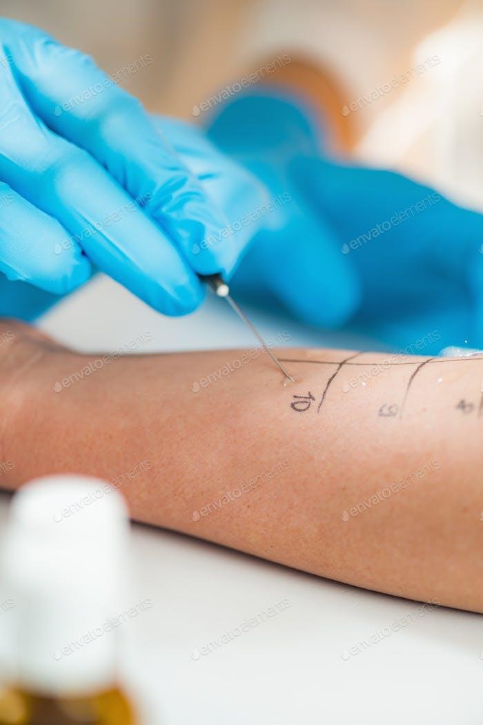 Skin Prick Allergy Testing