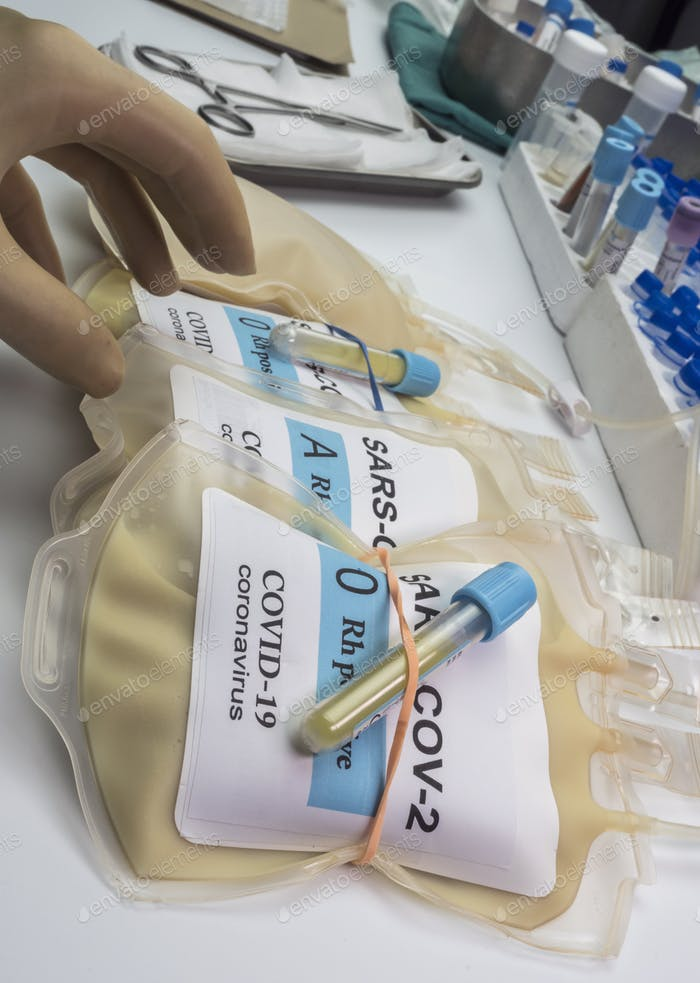 Plasma bag with antibodies from people cured of SARS-COV-2 Covid-19