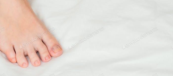Toenail clamp is mounted on an ingrown toenail