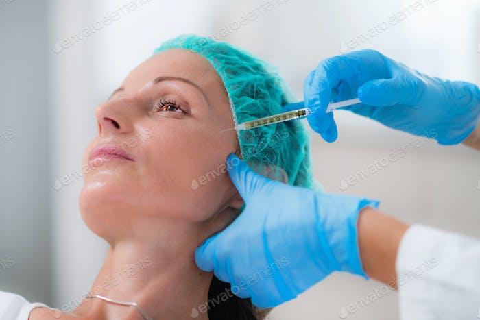 PRP Gesichtsinjektion. Thrombozytenreiche Plasma-Behandlung