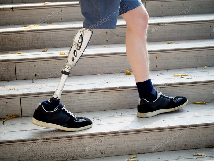 Young man with prosthetic leg walking