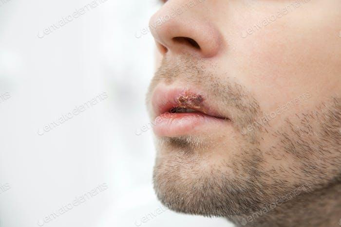 Junger Mann, der an Herpes auf dem Mund leidet