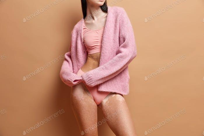 Irreconocible vitiligo afectado mujer se encuentra en ropa interior contra fondo marrón. Despigmentación