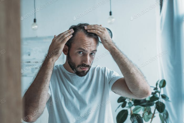mid adult man with alopecia looking at mirror, hair loss concept