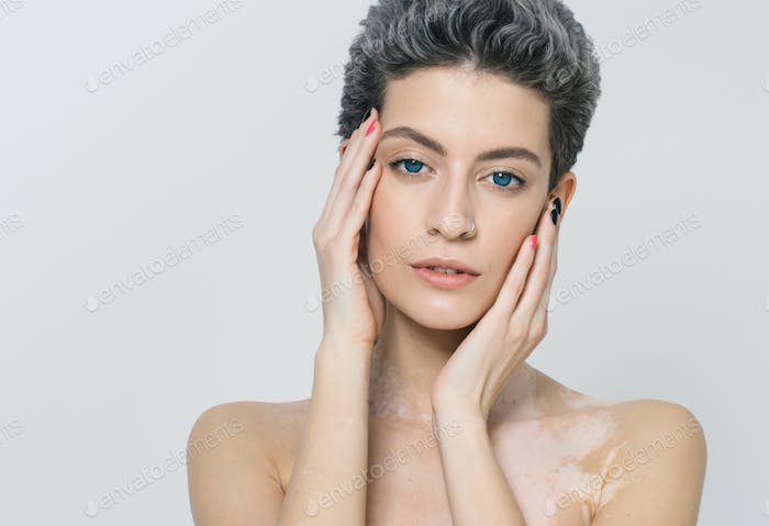 Vitiligo Pigment Woman Skin Unusual Beauty Portrait Woman Skin Beauty Portrait Photo By Kiraliffe On Envato Elements