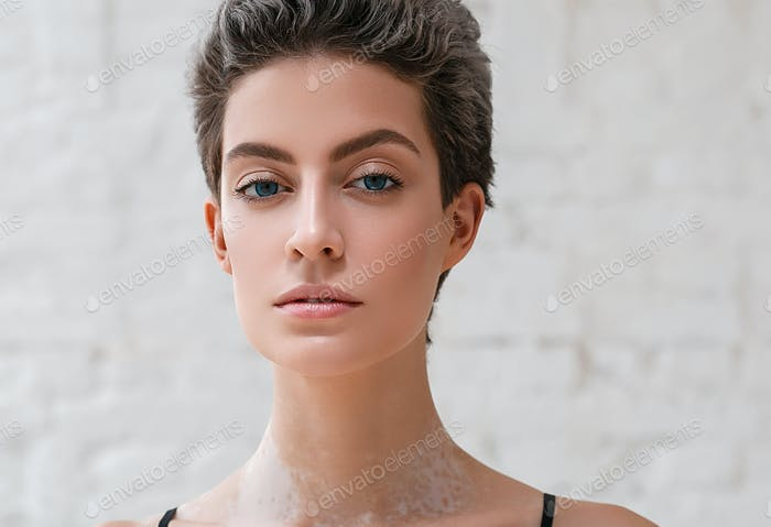 Vitiligo woman female beauty portrait