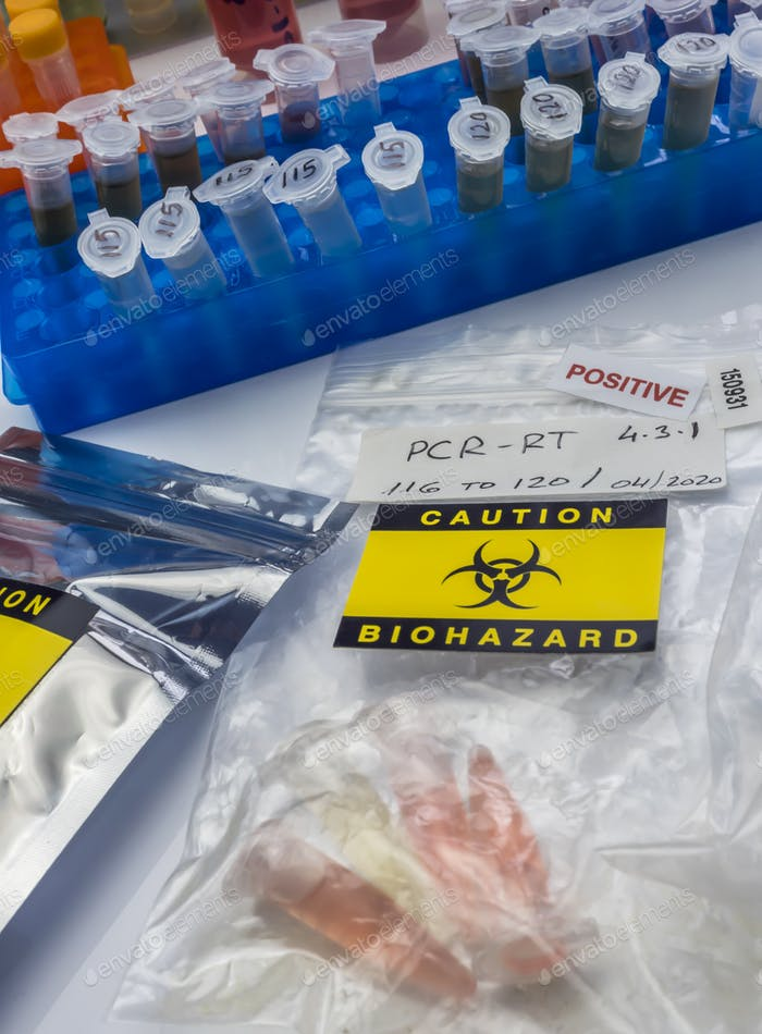 Vials with samples of SARS-COV-2 Covid-19 in a research laboratory