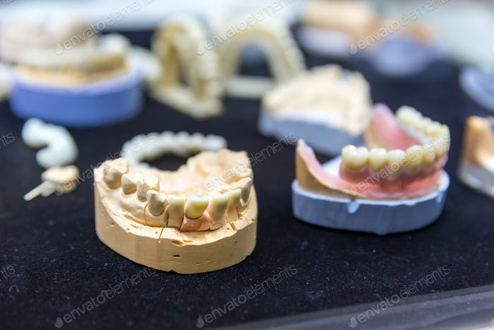 Denture, prosthetic dentistry, dental implants
