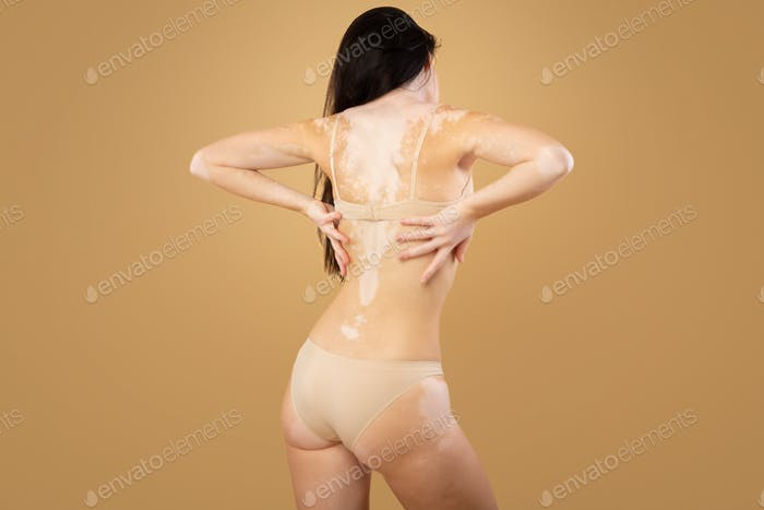 Vitiligo Skin. Rear View Of Woman With Body Depigmentation Posing In Underwear