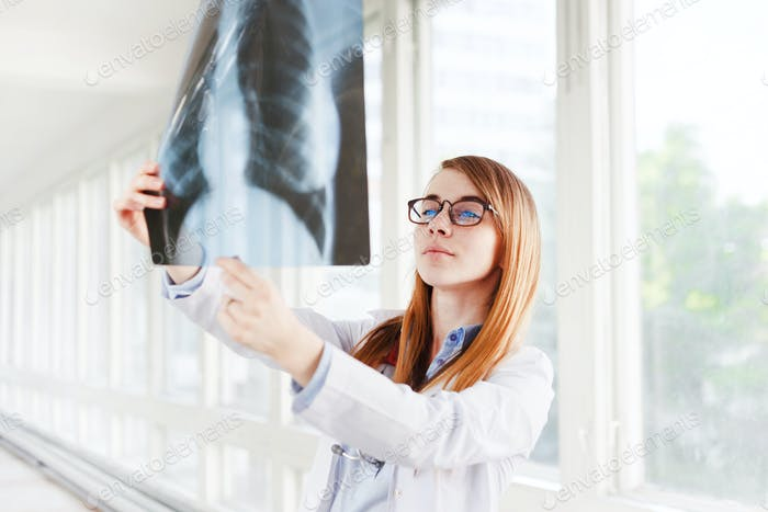 Young female doctor looking at the x-ray picture of lungs in hospital
