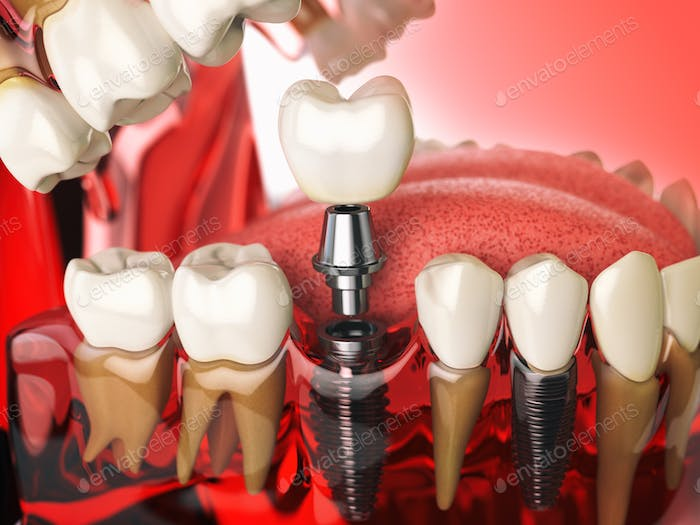 Tooth implant in the model human teeth, gums and denturas. Denta