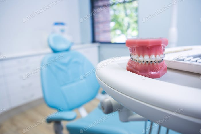 Dental mold on table by chair