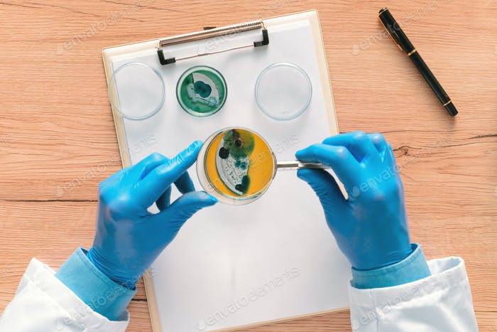 Overhead view of laboratory technician analyzing petri dish bact