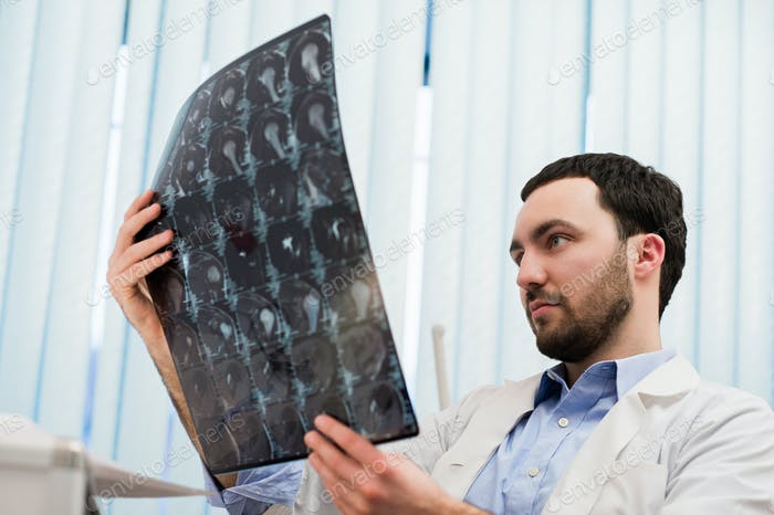 Closeup portrait of intellectual man healthcare personnel with white labcoat, looking at brain x-ray