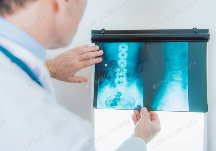 X Ray in Doctor Hands