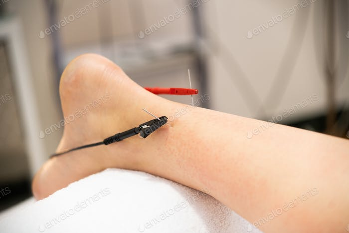 Electro-acupuncture dry with needle connecting machine