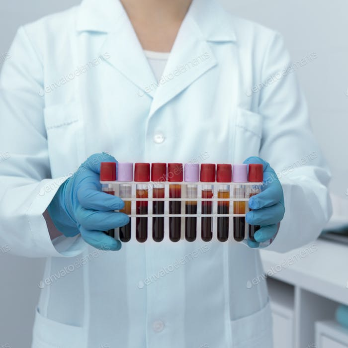 Blood test tubes in woman hands, modern laboratory