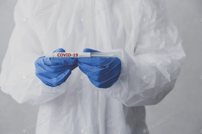 Laboratory technician hold coronavirus test tube for COVID-19 test