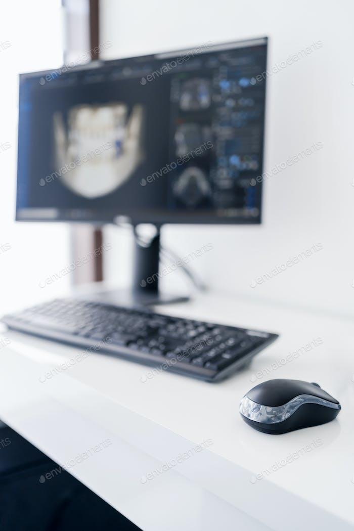 Medical technology dental scan on display