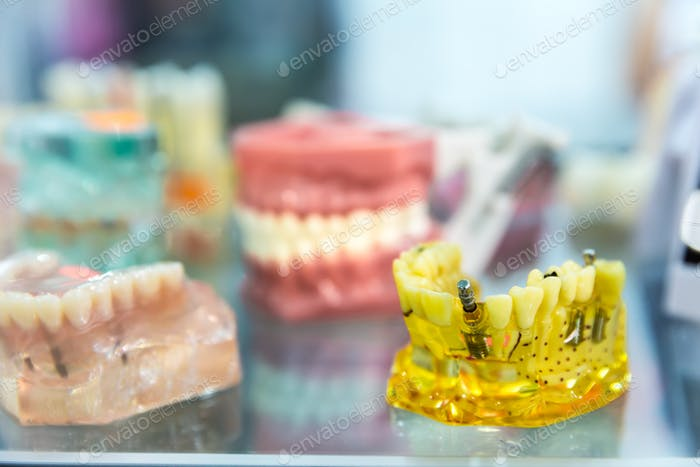 Medicine equipment, prosthetic dentistry, dentures