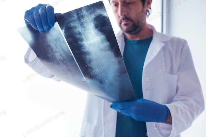 Arzt untersucht Röntgenaufnahme der menschlichen Wirbelsäule