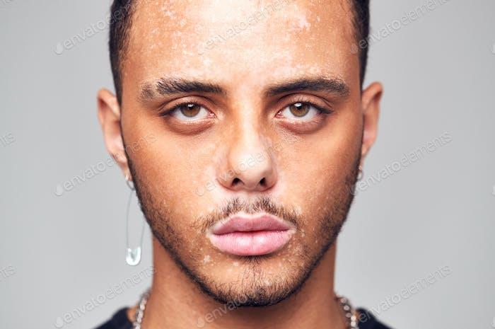 Studio Porträt von jungen Mann mit Haut Pigmentierung Störung Blick auf Kamera