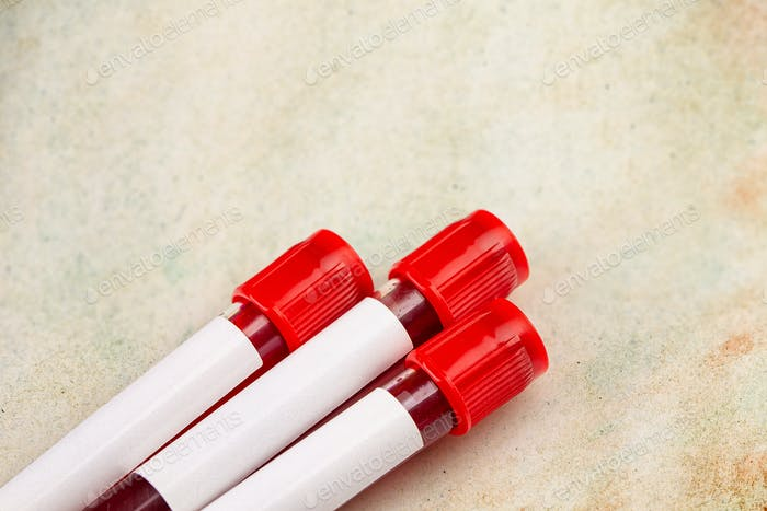 Blood sample in test tube