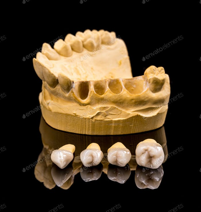 Ceramic dental implants