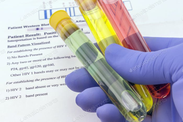 Blood sample and lab request for anti-HIV testing
