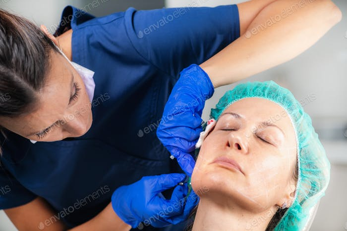 Meso Threads Face Lifting Treatment. Mesotherapy in Aesthetic Medicine