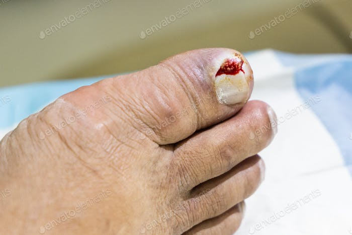 Foot with ingrown toenail painful infection ready to be treated