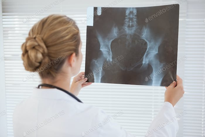 Focused doctor looking at xray at work