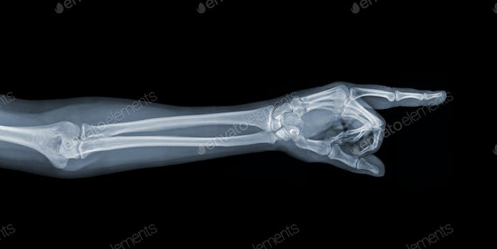 Pointing X-ray hand