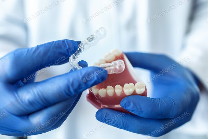 doctor hold an artificial model of the jaw with invisible braces.